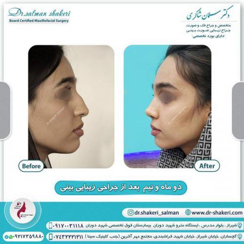 جراحی بینی 120