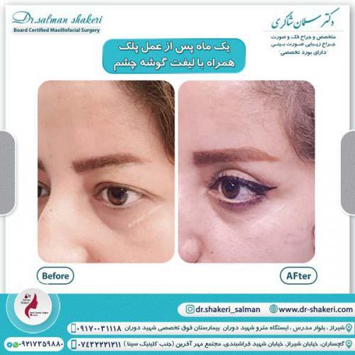 جراحی پلک همراه با لیفت گوشه چشم 10