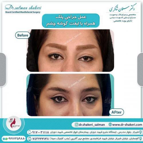 جراحی پلک همراه با لیفت گوشه چشم 12 (1)