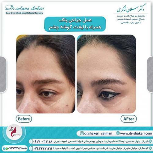 جراحی پلک همراه با لیفت گوشه چشم 13